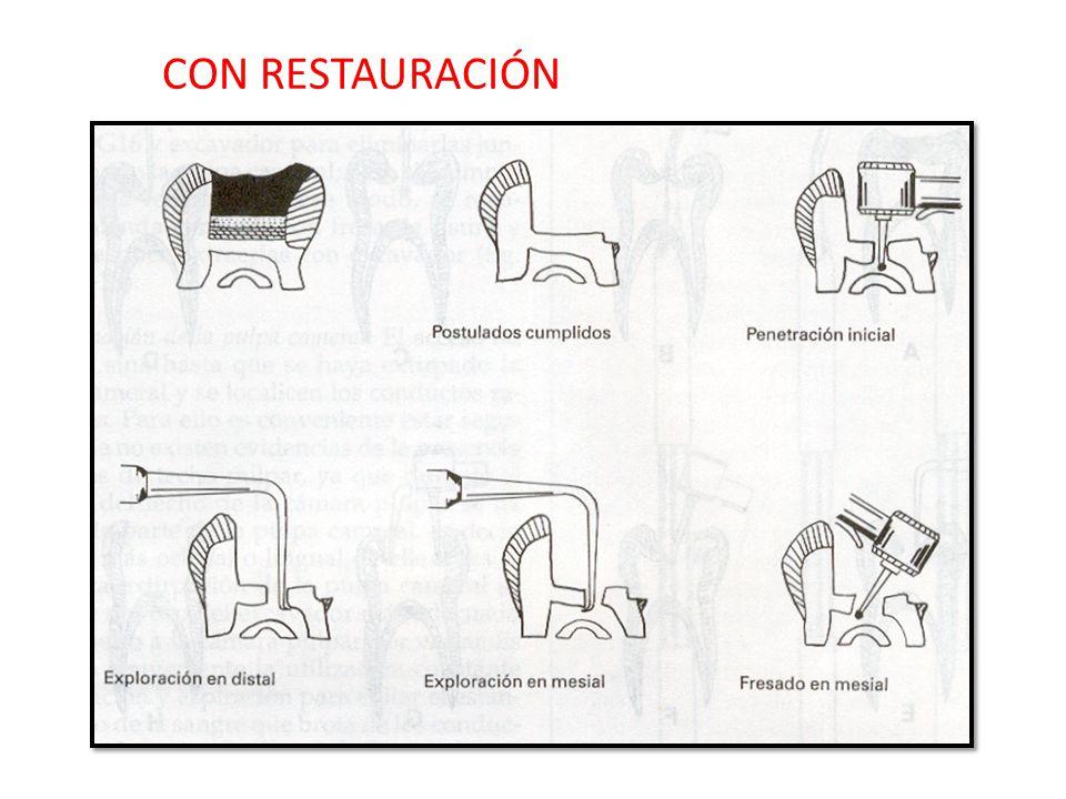 CON RESTAURACIÓN