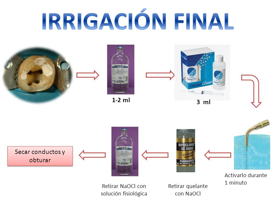 IRRIGACIÓN FINAL 1-2 ml 3 ml Secar conductos y obturar
