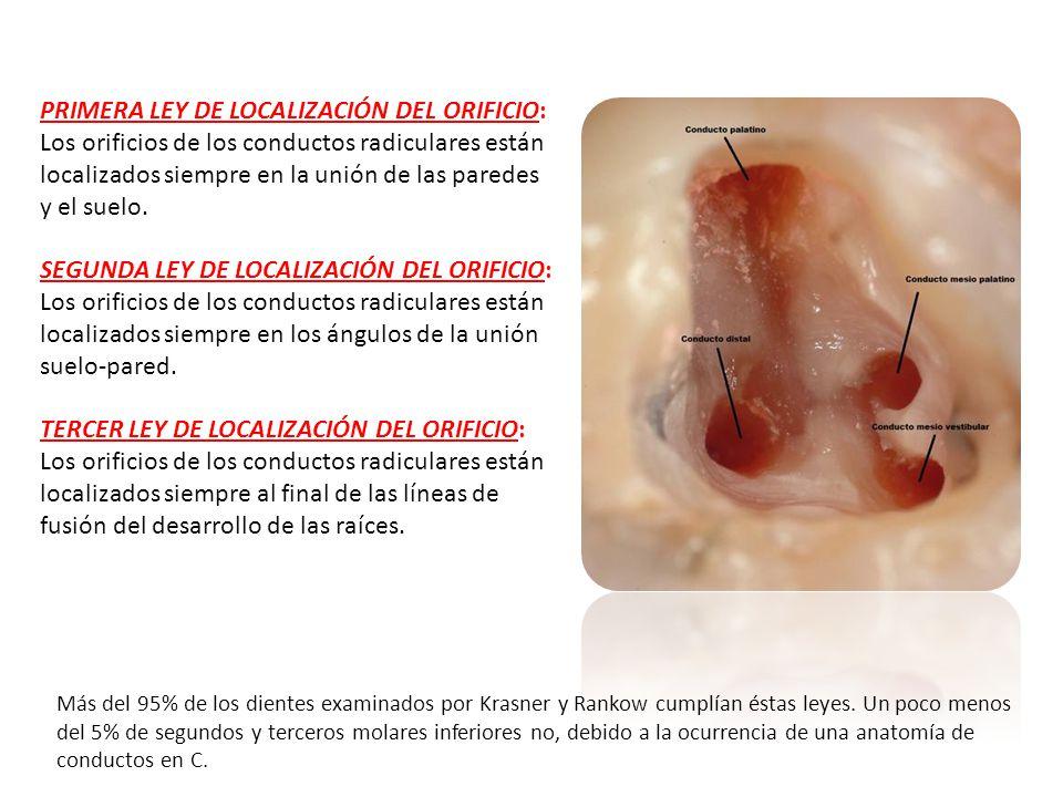 PRIMERA LEY DE LOCALIZACIÓN DEL ORIFICIO: