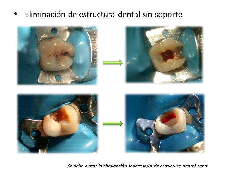 Eliminación de estructura dental sin soporte