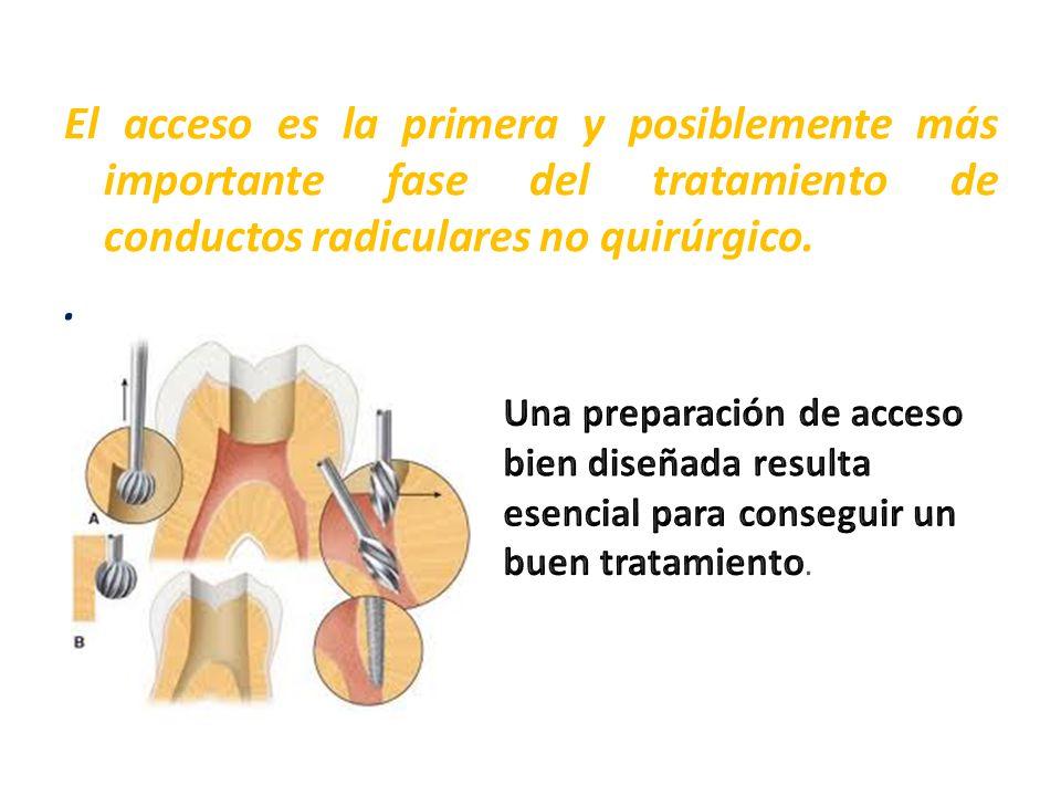 El acceso es la primera y posiblemente más importante fase del tratamiento de conductos radiculares no quirúrgico.