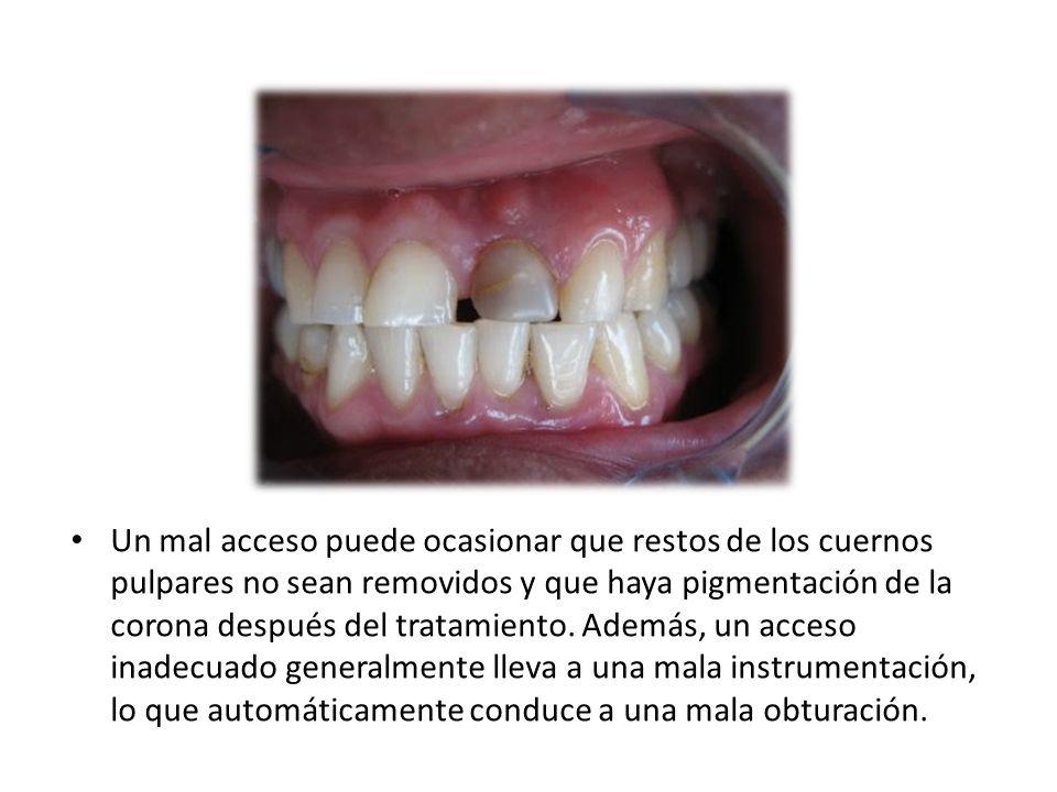 Un mal acceso puede ocasionar que restos de los cuernos pulpares no sean removidos y que haya pigmentación de la corona después del tratamiento.