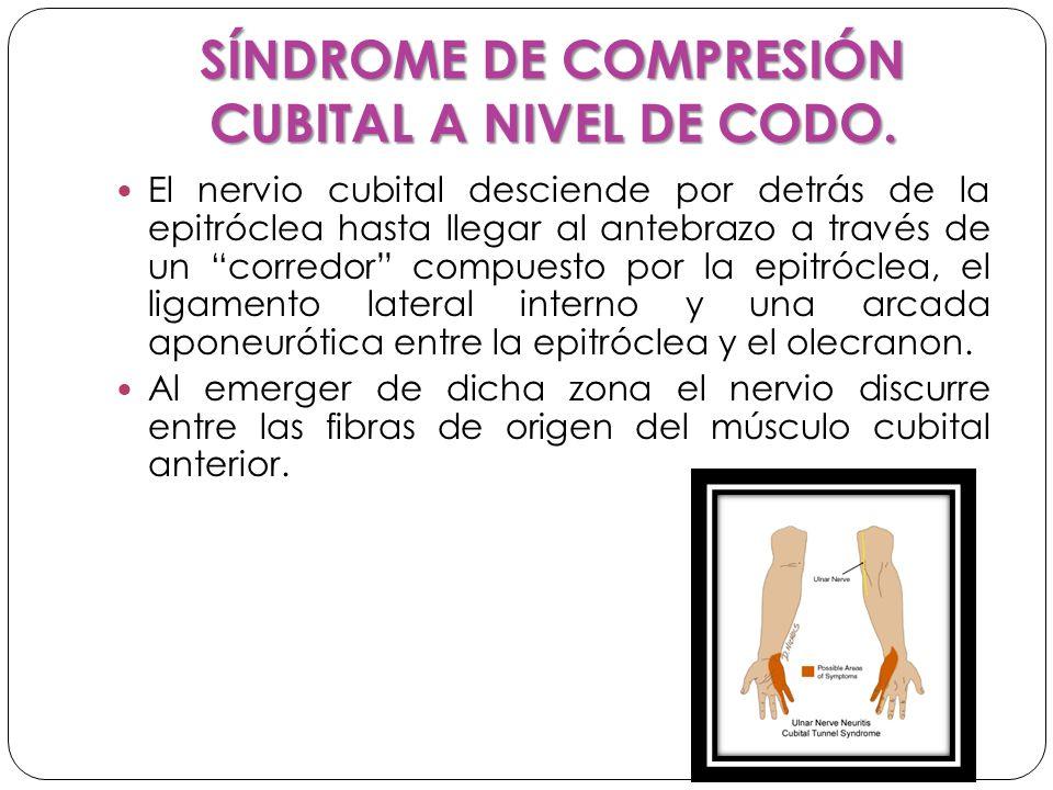 SÍNDROME DE COMPRESIÓN CUBITAL A NIVEL DE CODO.
