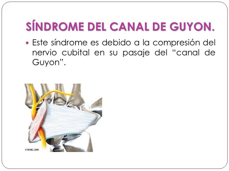SÍNDROME DEL CANAL DE GUYON.