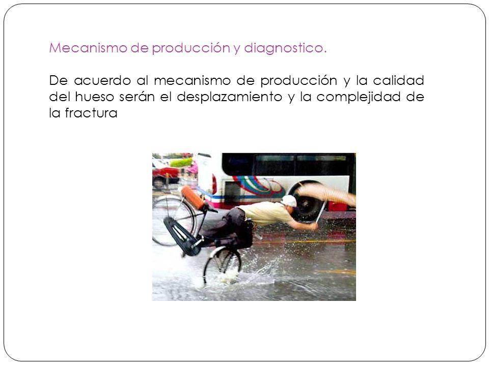 Mecanismo de producción y diagnostico.