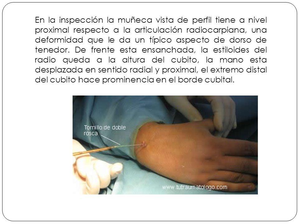 En la inspección la muñeca vista de perfil tiene a nivel proximal respecto a la articulación radiocarpiana, una deformidad que le da un típico aspecto de dorso de tenedor.
