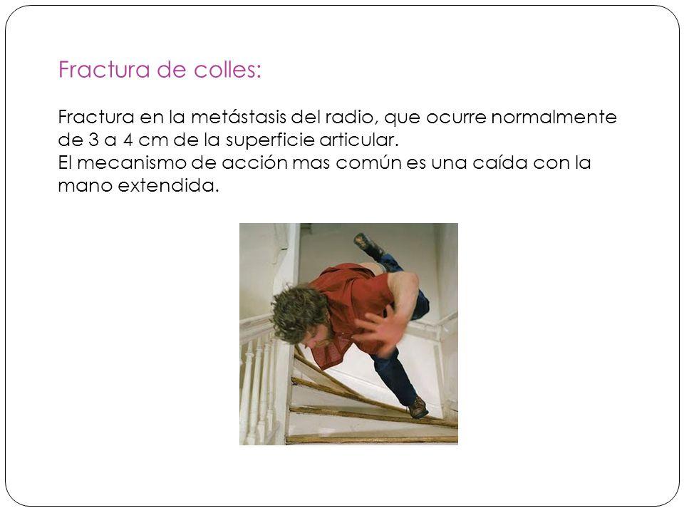 Fractura de colles: Fractura en la metástasis del radio, que ocurre normalmente de 3 a 4 cm de la superficie articular.