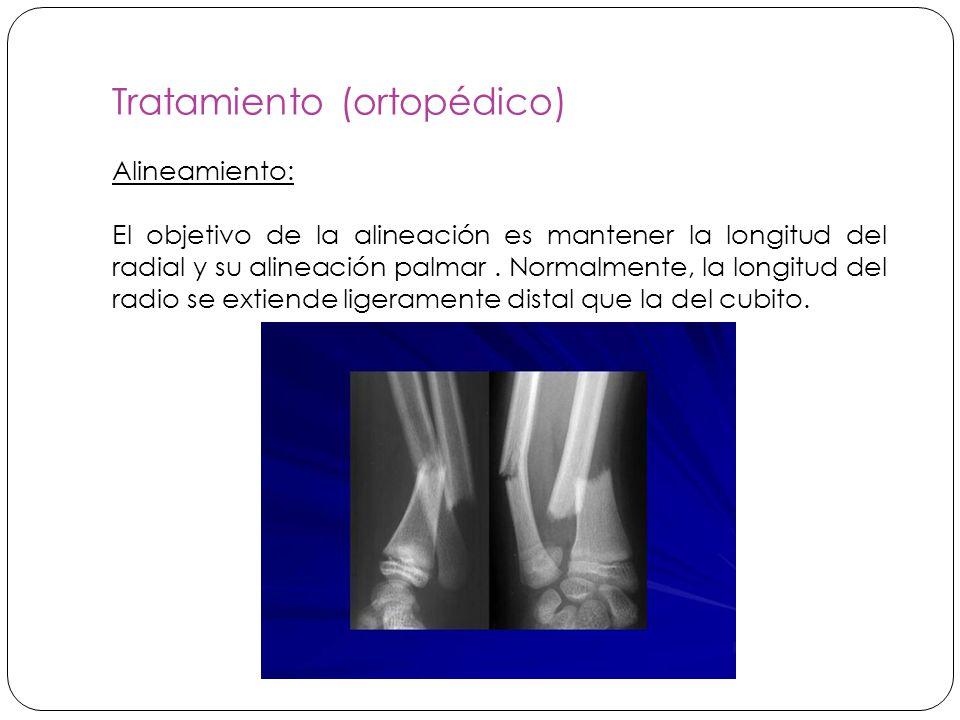 Tratamiento (ortopédico)