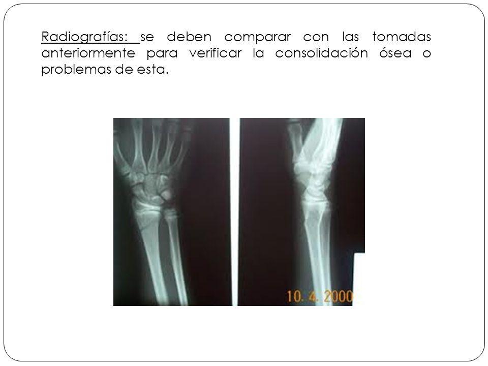 Radiografías: se deben comparar con las tomadas anteriormente para verificar la consolidación ósea o problemas de esta.
