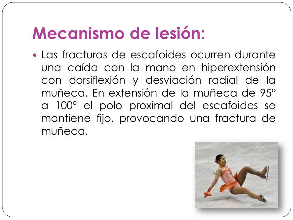 Mecanismo de lesión: