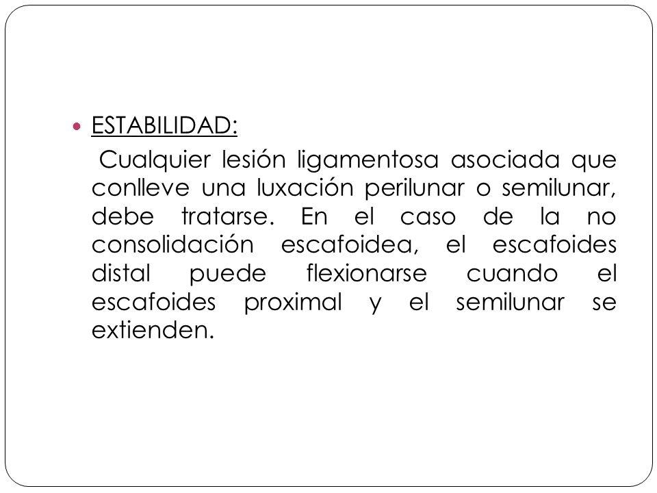 ESTABILIDAD: