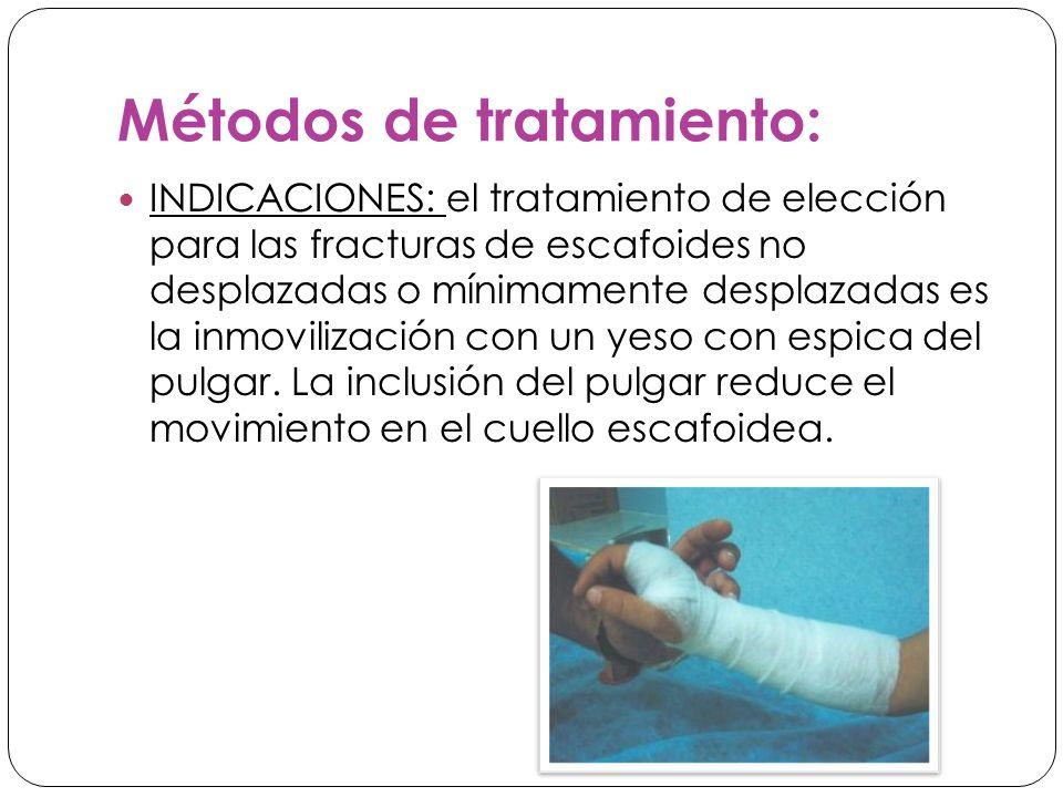 Métodos de tratamiento: