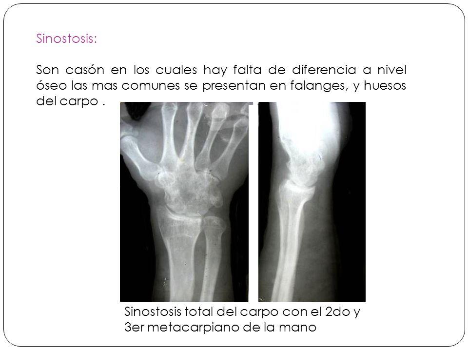 Sinostosis: Son casón en los cuales hay falta de diferencia a nivel óseo las mas comunes se presentan en falanges, y huesos del carpo .