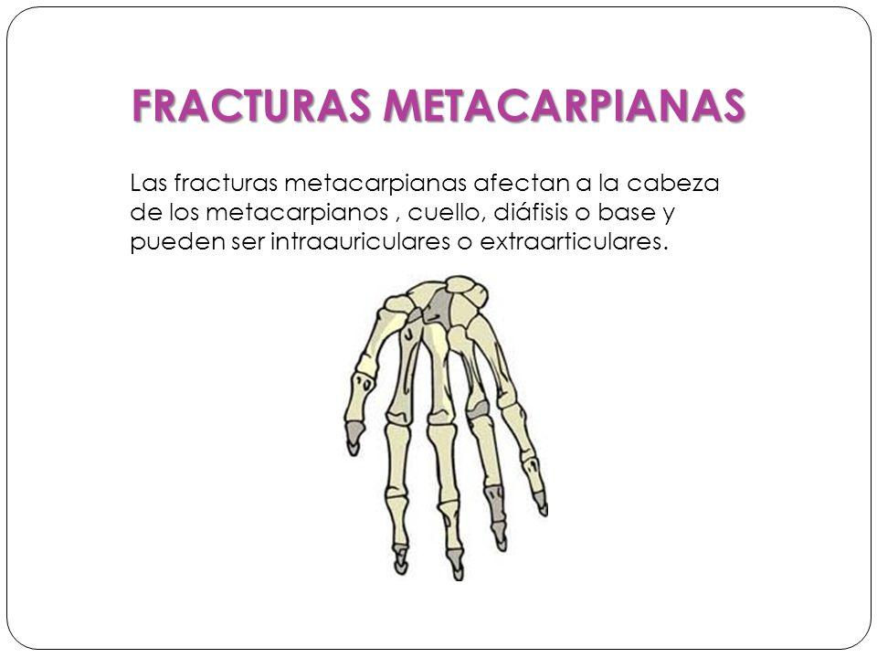 FRACTURAS METACARPIANAS