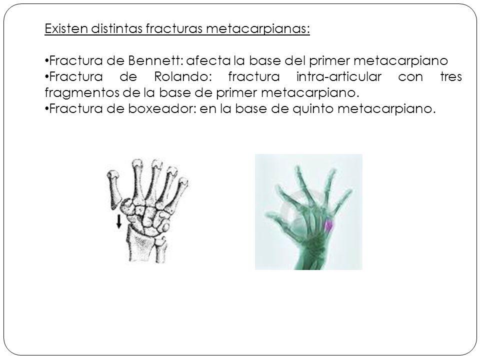 Existen distintas fracturas metacarpianas:
