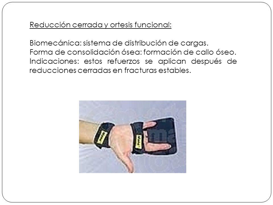 Reducción cerrada y ortesis funcional: