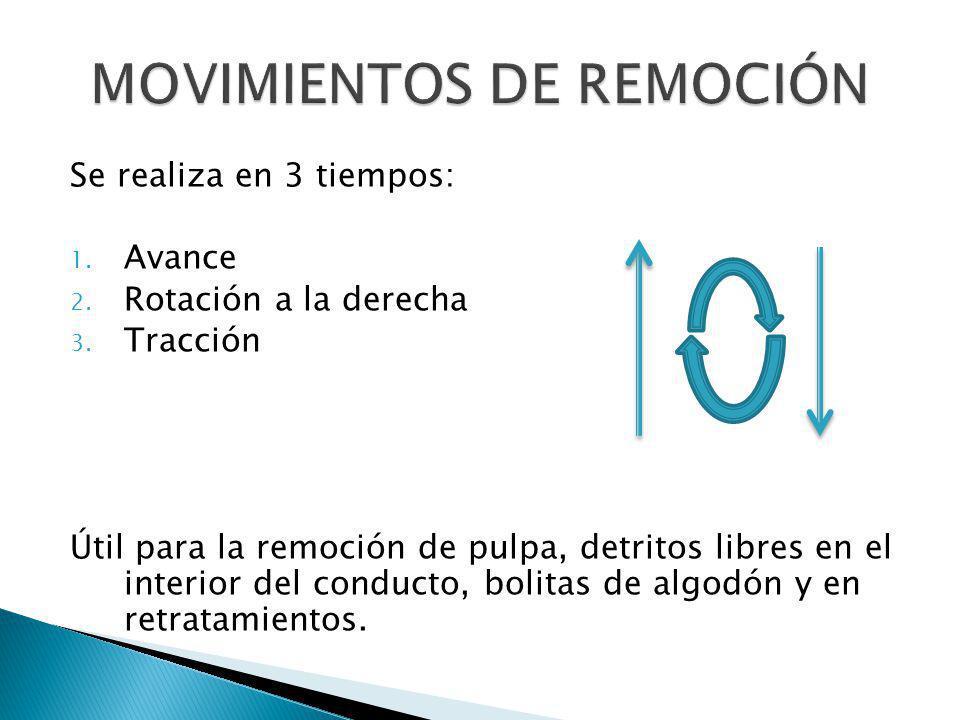 MOVIMIENTOS DE REMOCIÓN