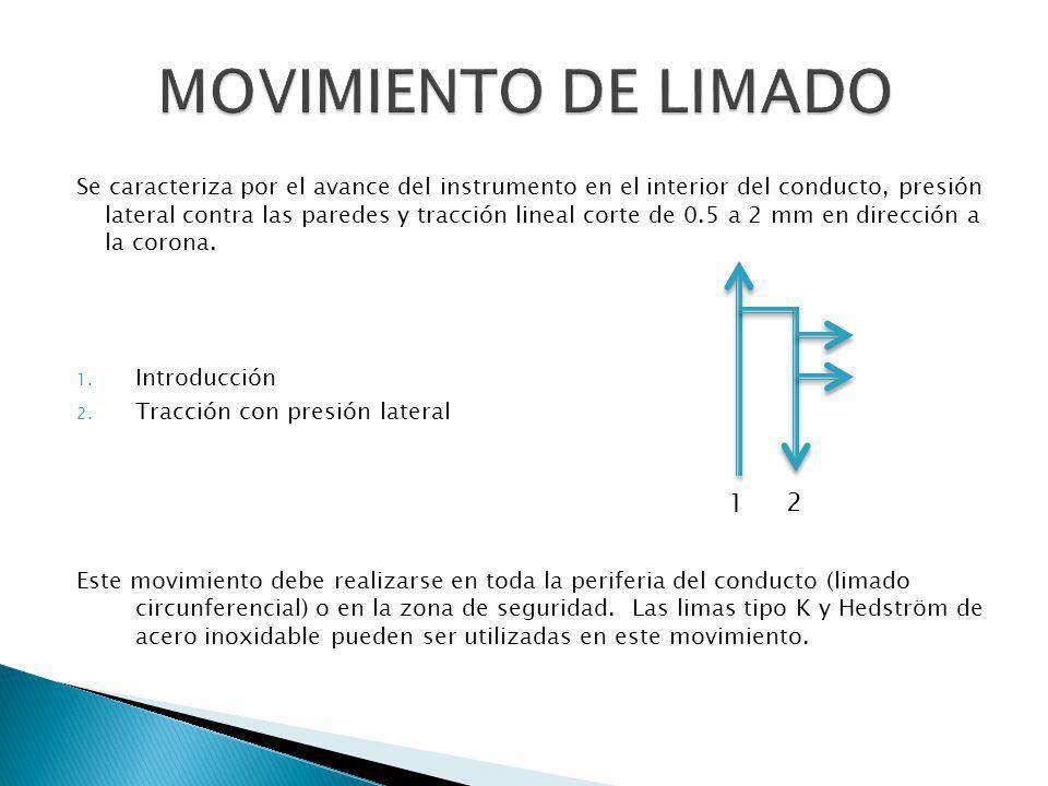 MOVIMIENTO DE LIMADO