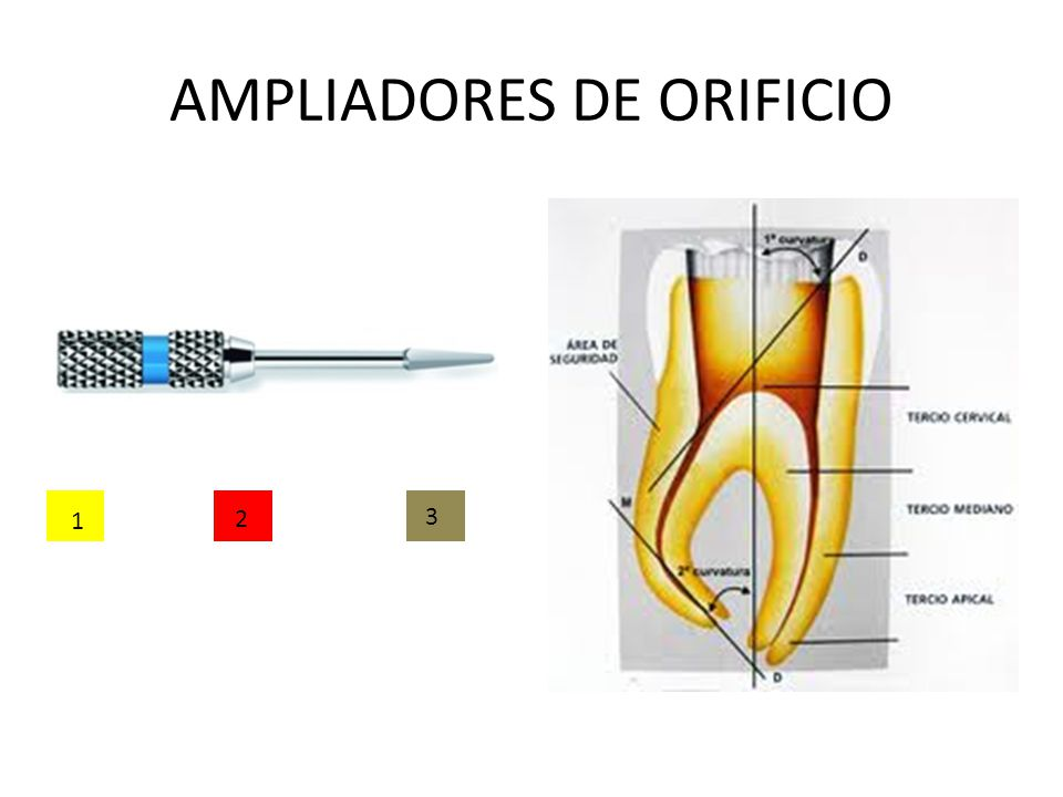 AMPLIADORES DE ORIFICIO