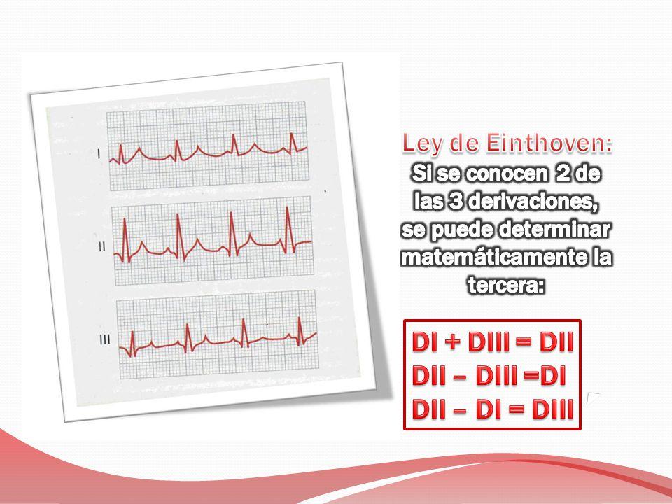 Ley de Einthoven: DI + DIII = DII DII – DIII =DI DII – DI = DIII