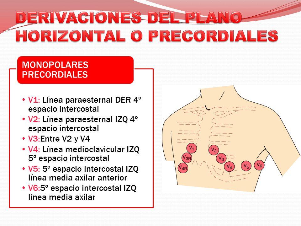 DERIVACIONES DEL PLANO HORIZONTAL O PRECORDIALES