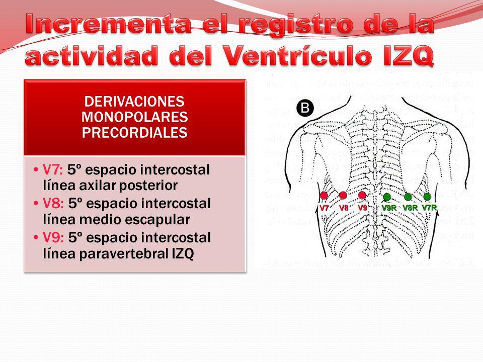 Incrementa el registro de la actividad del Ventrículo IZQ