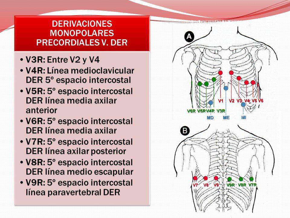 DERIVACIONES MONOPOLARES PRECORDIALES V. DER