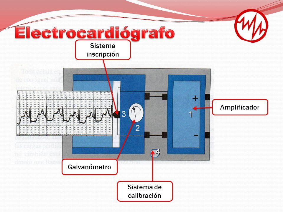 Sistema de calibración