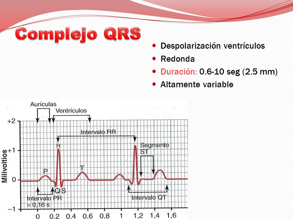 Complejo QRS Despolarización ventrículos Redonda