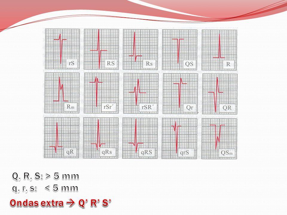 Q, R, S: > 5 mm q, r, s: < 5 mm Ondas extra  Q' R' S'