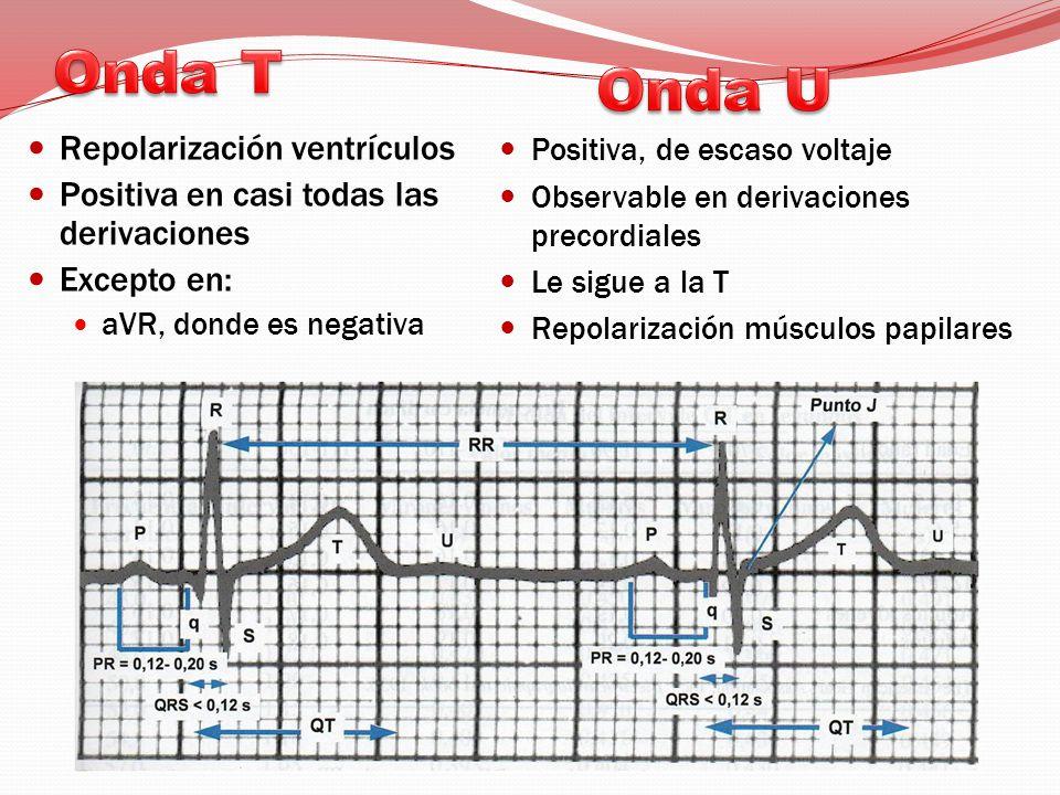 Onda T Onda U Repolarización ventrículos