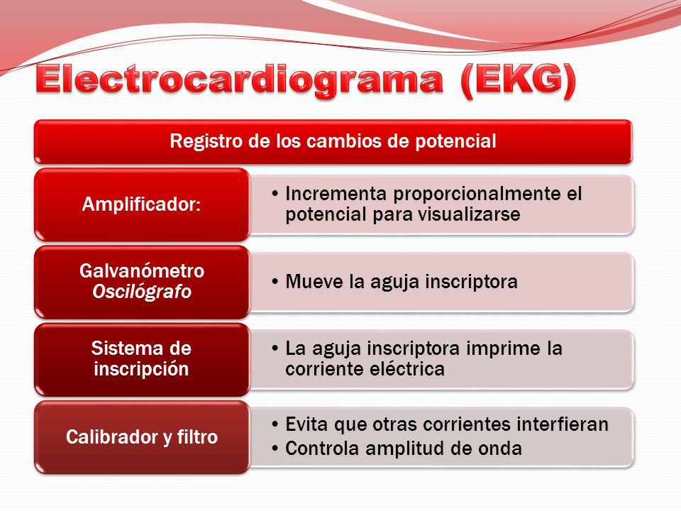 Electrocardiograma (EKG)