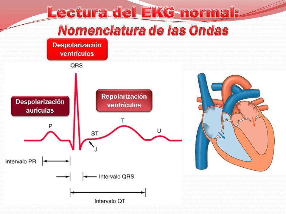 Lectura del EKG normal: Nomenclatura de las Ondas