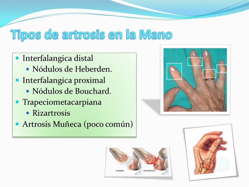 Tipos de artrosis en la Mano