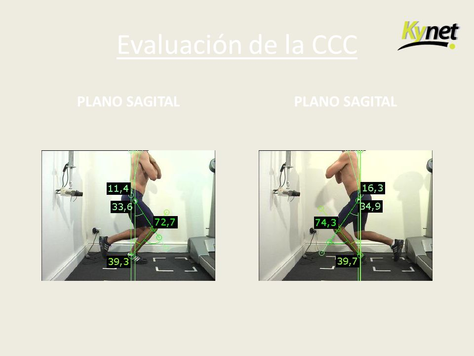 Evaluación de la CCC PLANO SAGITAL PLANO SAGITAL