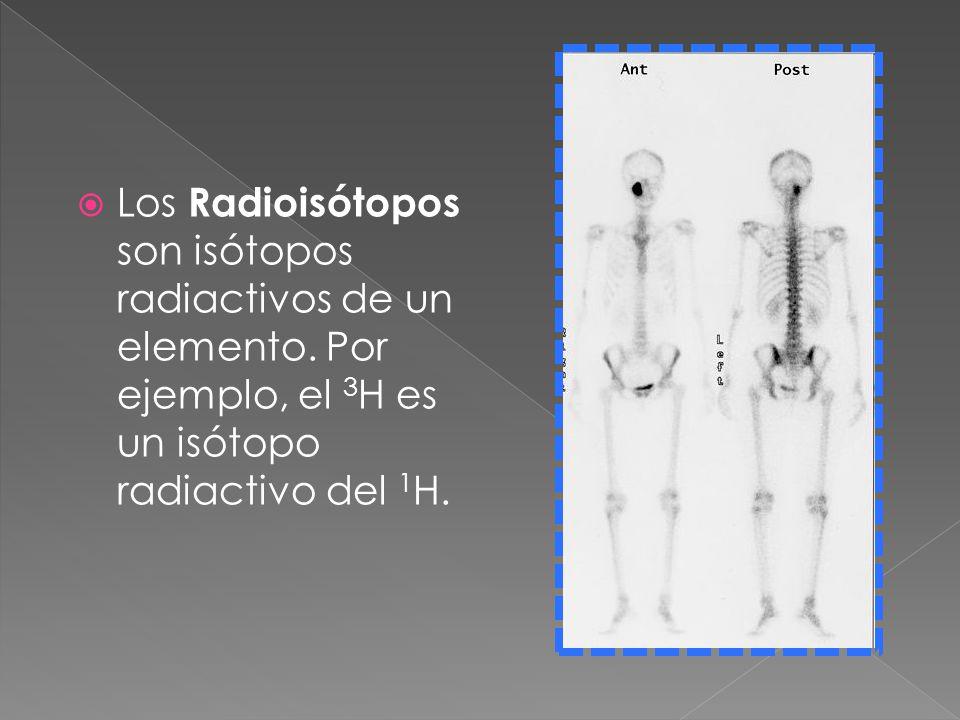 Los Radioisótopos son isótopos radiactivos de un elemento