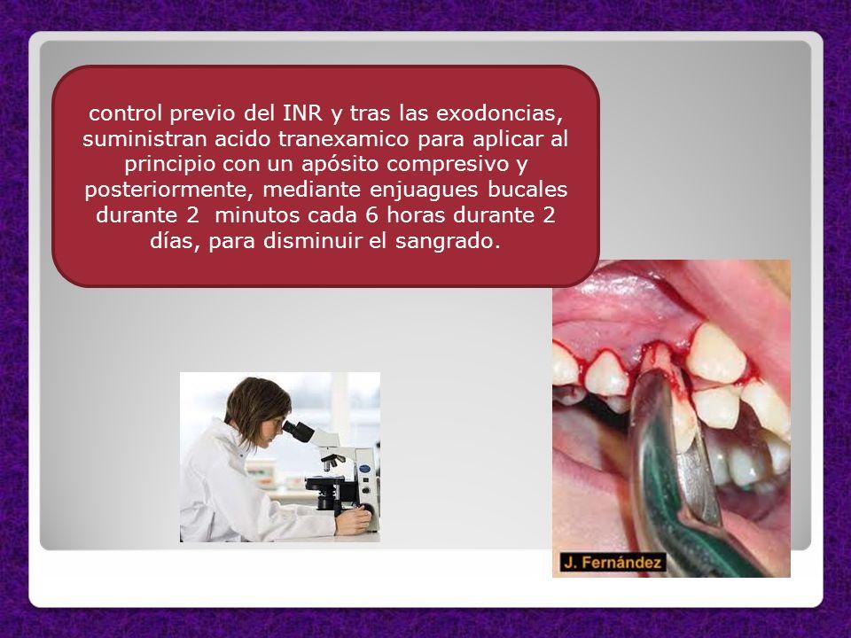 control previo del INR y tras las exodoncias, suministran acido tranexamico para aplicar al principio con un apósito compresivo y posteriormente, mediante enjuagues bucales durante 2 minutos cada 6 horas durante 2 días, para disminuir el sangrado.