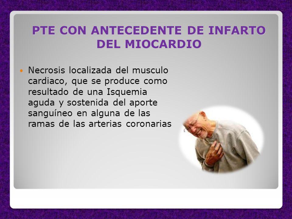 PTE CON ANTECEDENTE DE INFARTO DEL MIOCARDIO