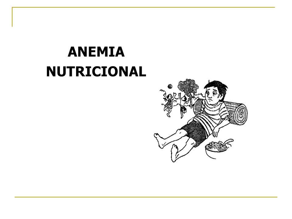 ANEMIA NUTRICIONAL