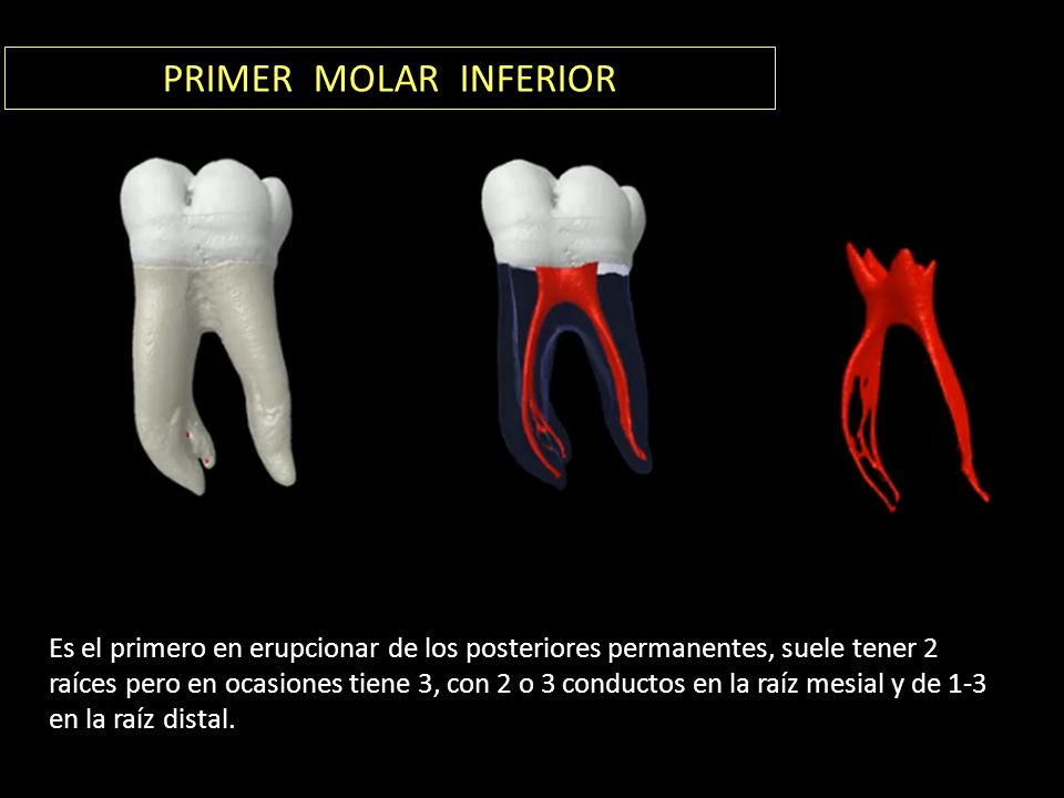 PRIMER MOLAR INFERIOR