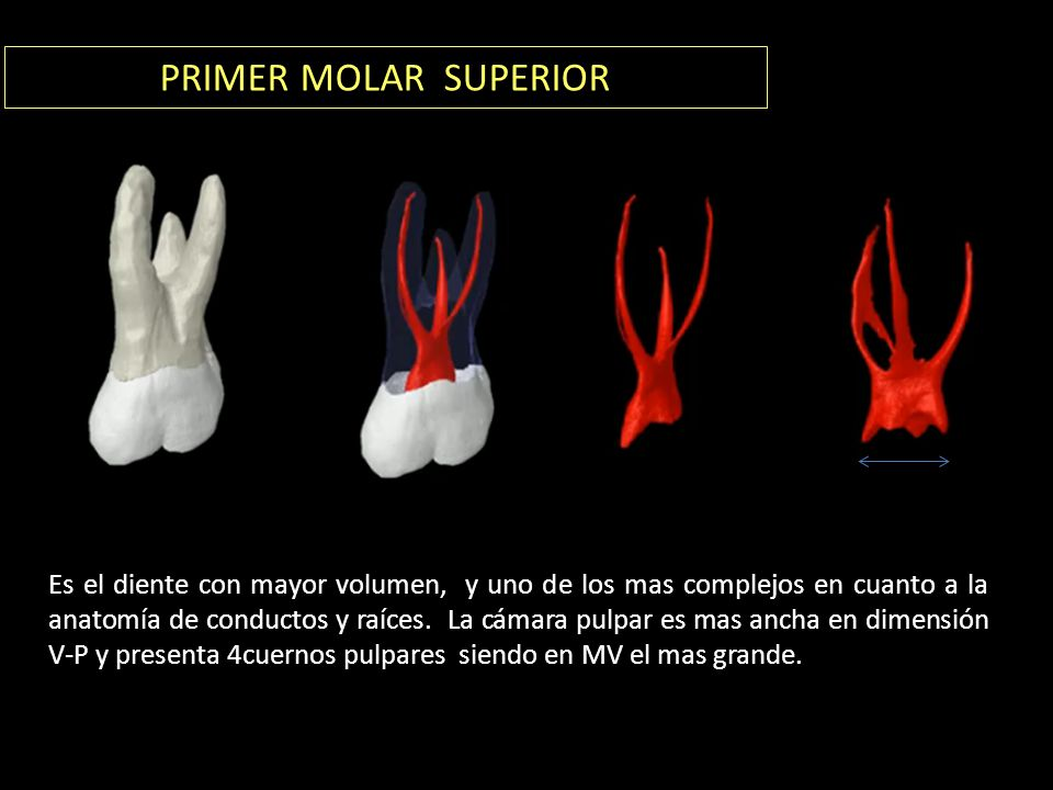 PRIMER MOLAR SUPERIOR