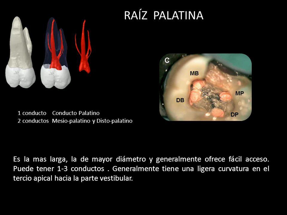 RAÍZ PALATINA 1 conducto Conducto Palatino. 2 conductos Mesio-palatino y Disto-palatino.
