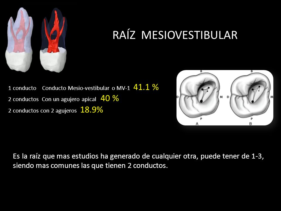 RAÍZ MESIOVESTIBULAR 1 conducto Conducto Mesio-vestibular o MV-1 41.1 % 2 conductos Con un agujero apical 40 %