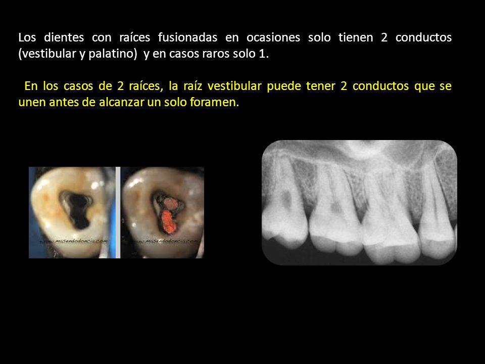 Los dientes con raíces fusionadas en ocasiones solo tienen 2 conductos (vestibular y palatino) y en casos raros solo 1.