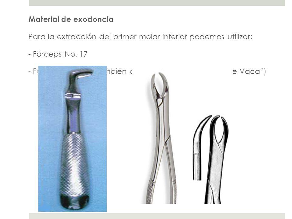 Material de exodoncia Para la extracción del primer molar inferior podemos utilizar: - Fórceps No.