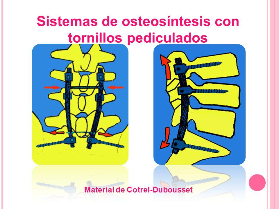 Sistemas de osteosíntesis con tornillos pediculados