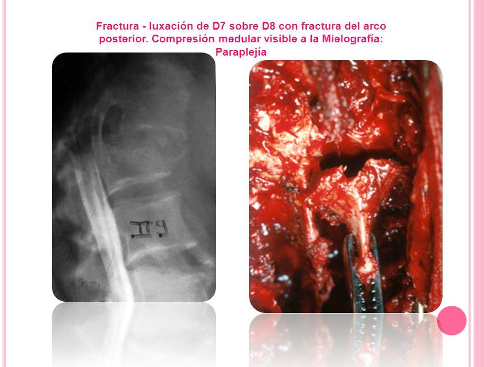 Fractura - luxación de D7 sobre D8 con fractura del arco posterior