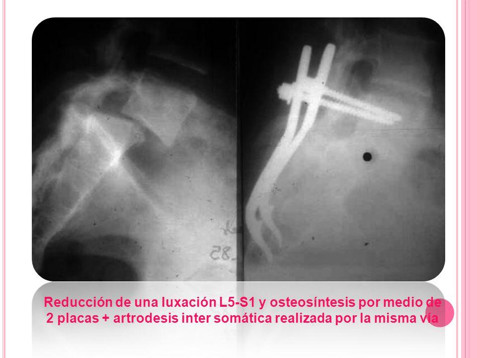 Reducción de una luxación L5-S1 y osteosíntesis por medio de 2 placas + artrodesis inter somática realizada por la misma vía