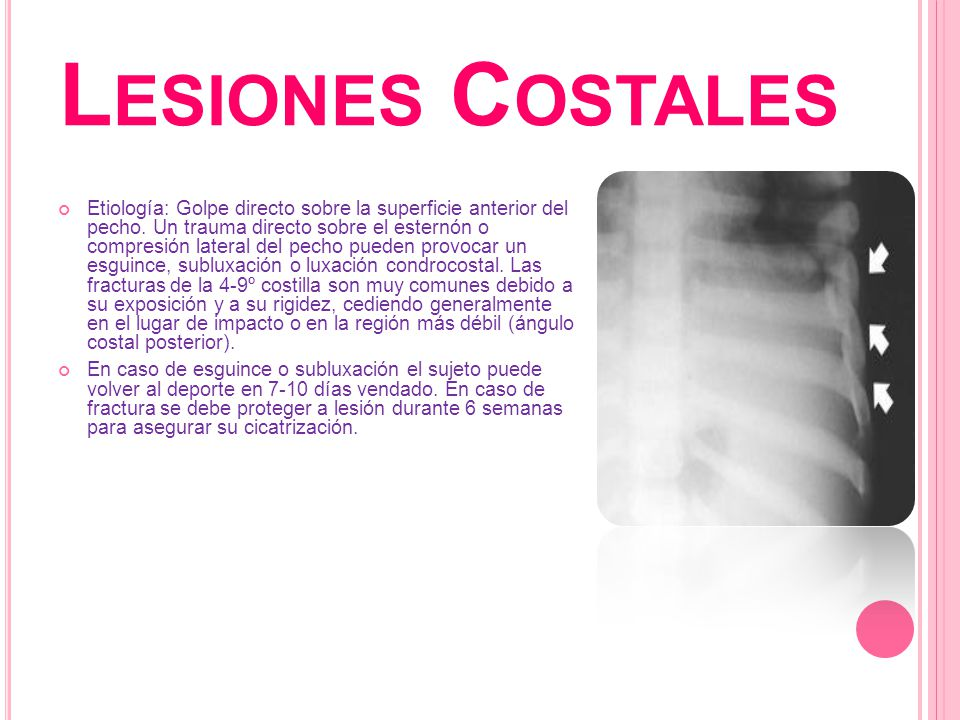 Lesiones Costales
