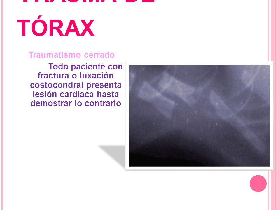 Trauma de tórax Traumatismo cerrado Todo paciente con fractura o luxación costocondral presenta lesión cardiaca hasta demostrar lo contrario
